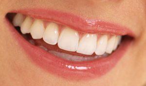Kaplama Diş Neden Ağrır