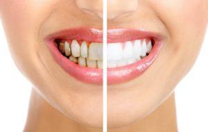 Dişlerde Kararmalar Neden Oluşur