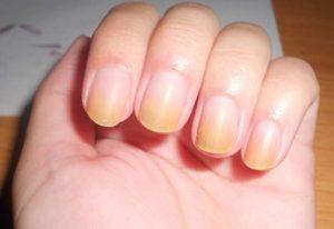 Sarı Tırnak Sendromu Neden Olur